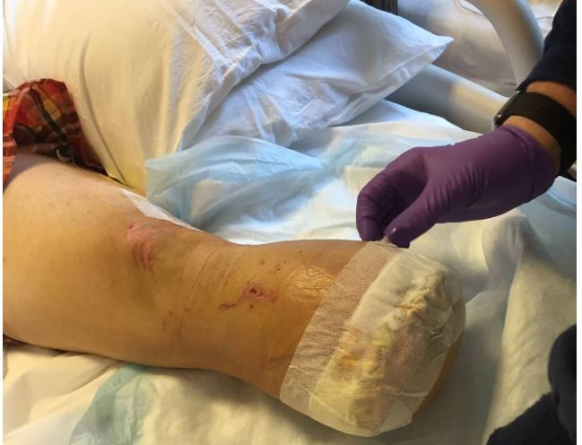 Guy Served His Friends Tacos Made from His Own Amputated Leg
