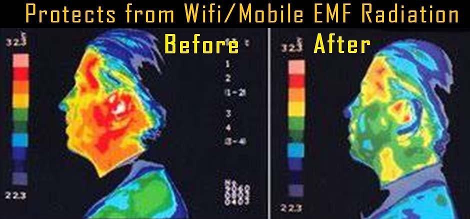 aura radiation.jpg
