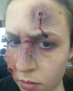 Broken Nose & Gunshot