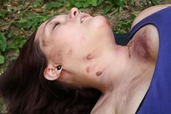Strangulation marks