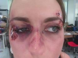 black eye, stitches, brusing
