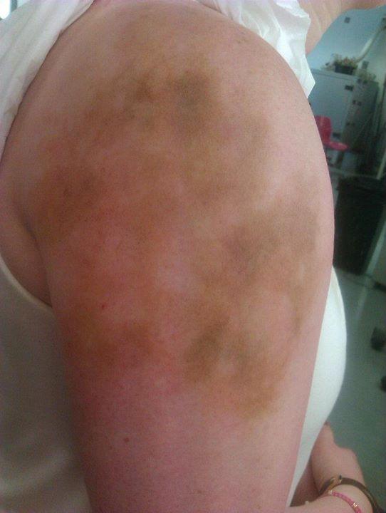 Older bruising