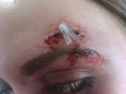 Close up of stitches
