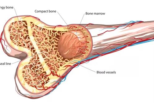 Adult Bone Marrow Transplant