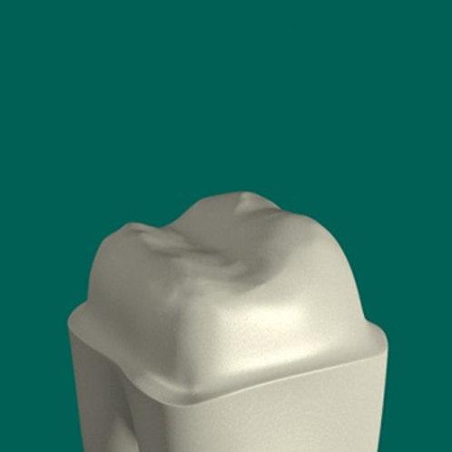 All Ceramic Crowns