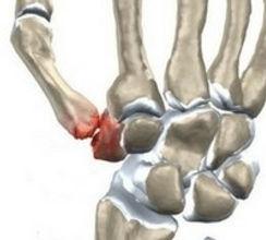 CMC 1 artrose.jpg