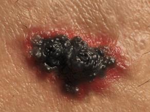 O melanoma acral é diagnosticado tardiamente