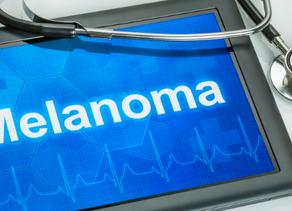 Melanoma amelanótico
