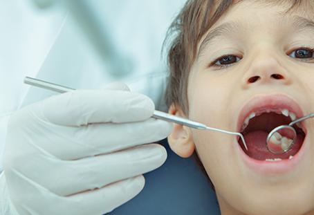 Existem cáries nos dentes de leite?