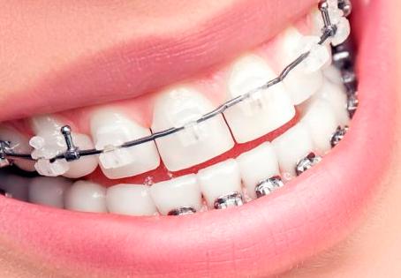Cuidados a ter com o seu aparelho dentário!