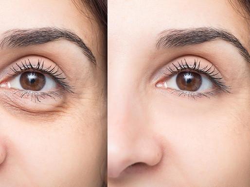 Los mejores remedios caseros para reducir las bolsas en los ojos