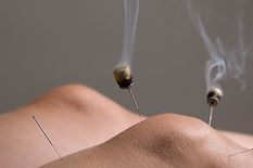 acupuncture-needles-with-moxa-moxibustio