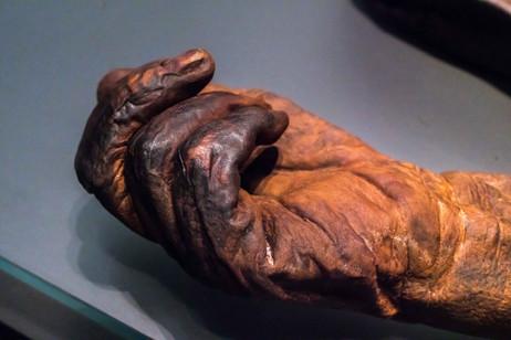 Bog Man Detail - National Museum of Ireland