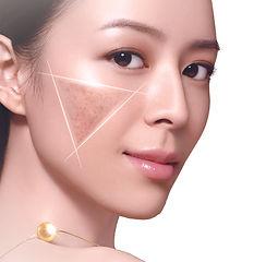 skin(1).jpg