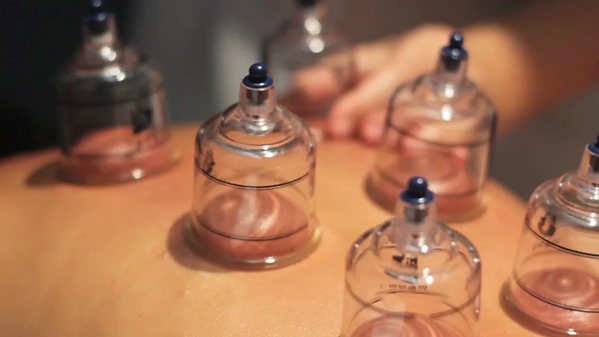 cupping 2.png