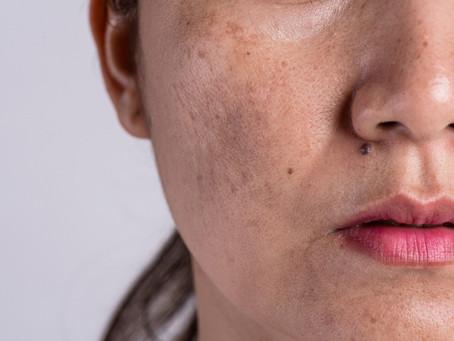 Melasma and its Treatments