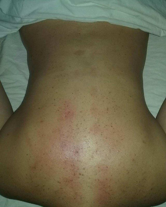 Post treatment results on back.