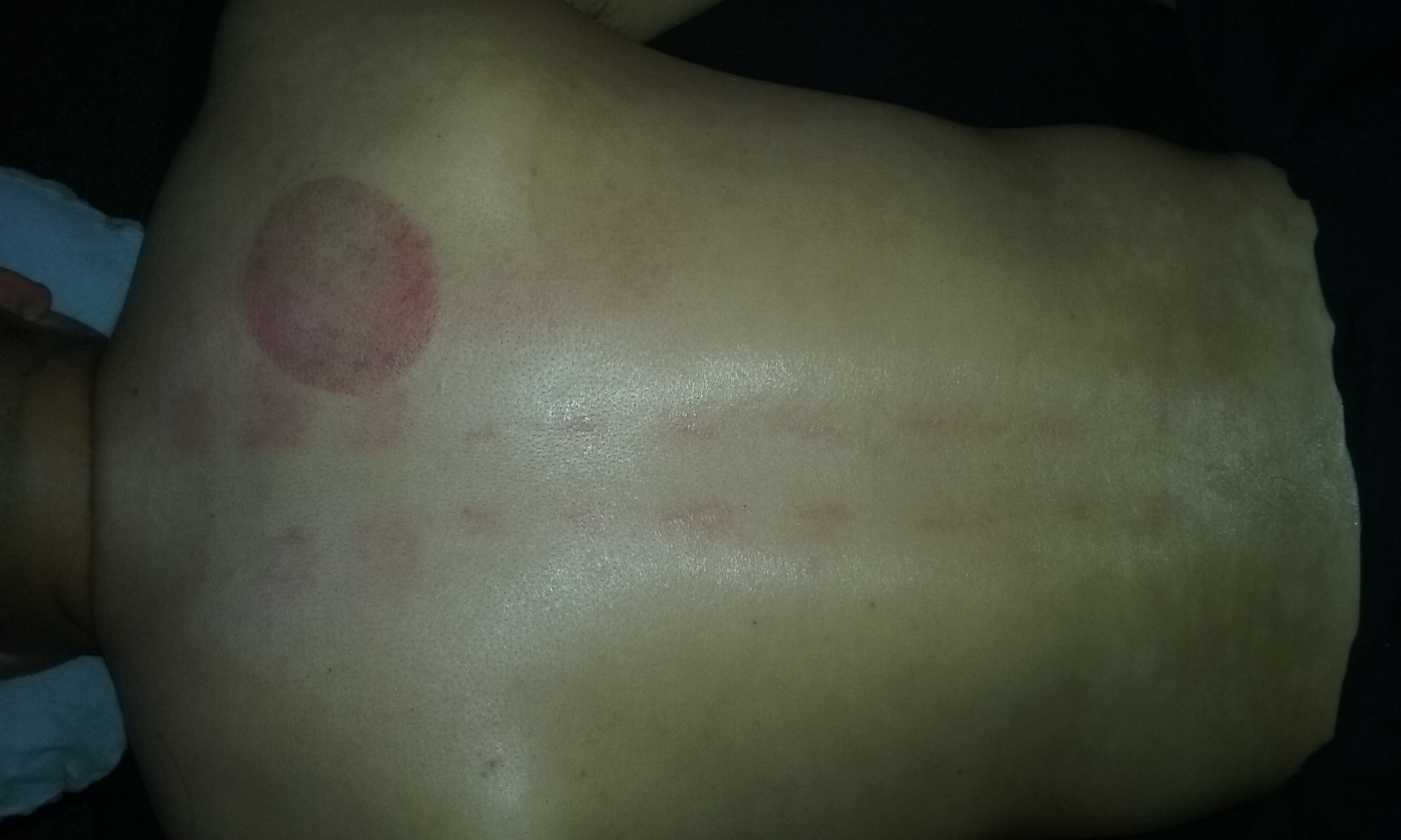 Cupping and acupressure down spine