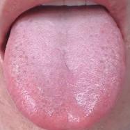 無料!体調がわかる「舌診」セミナー