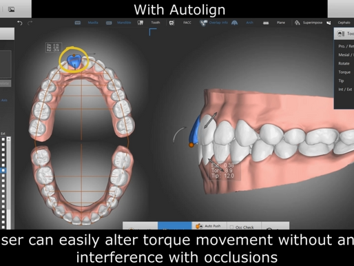 Make you virtual setup easier and faster with #Autolign 08