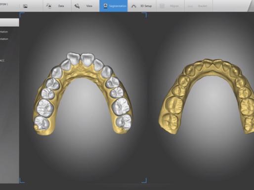 Fast Tooth Segmentation