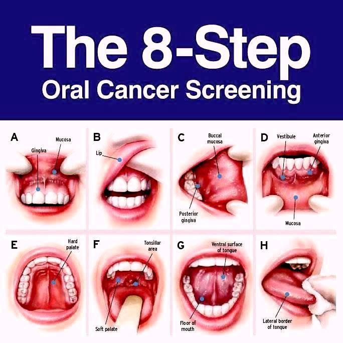 Oral Cancer Signs and Symptoms