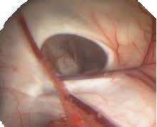 endoscopio.png