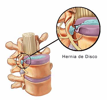 HERNIA CERVICAL.png