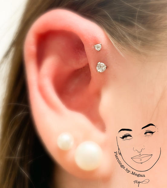 Double Forward Helix with Titanium 2.5mm