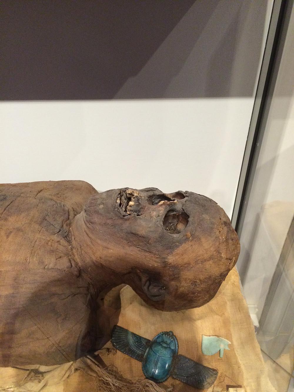 Mummy-Gustavianum,2mi3