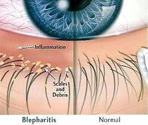 Seb-Blepharitis.jpg