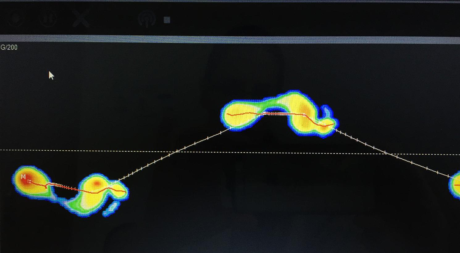 Analyse de la marche