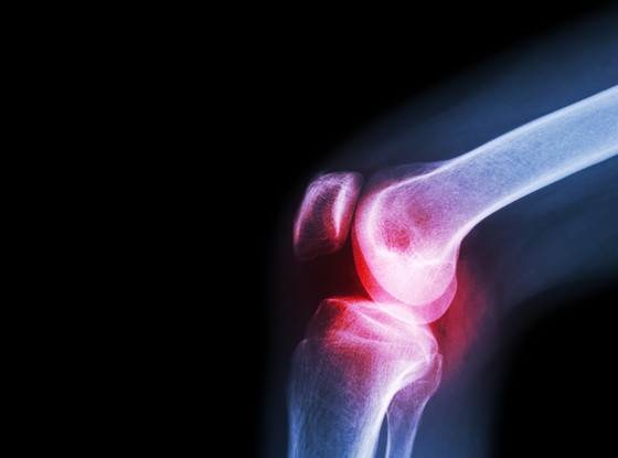 Prolotherapy for Osteoarthritic Knees