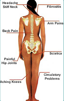 Joint and Back Pain Chart