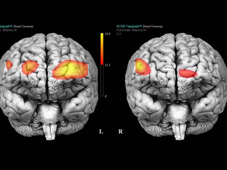 Brain Damage and BPD.