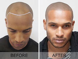 Scalp-Micropigmentation-SMP-1.jpg