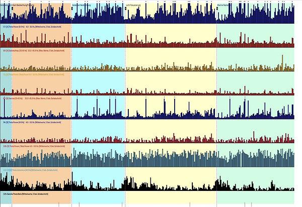 EEG Aktivitäten im zeitlichen Verlauf, die Farben stehen für die MZs.