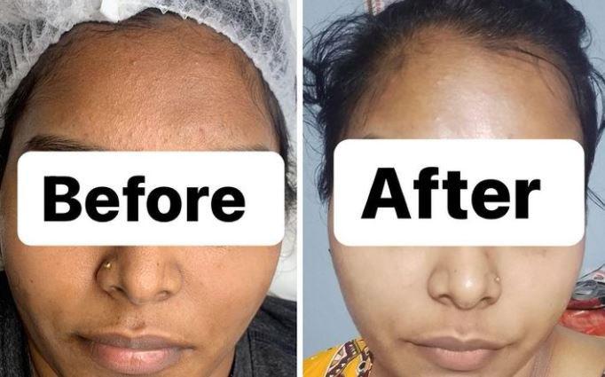 Whitening & Pigmentation Treatment