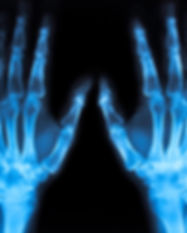 x ray Image of both human hands.jpg