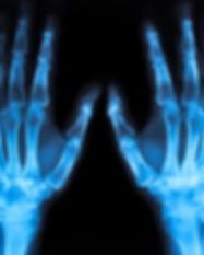 x ray Image of both human hands.jpg