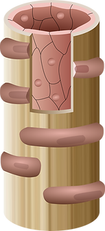 Microvessel diagram