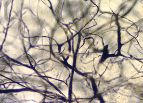 Advanced Solutions Discovers a Way to Guide New Blood Vessel Growth Across Tissue Boundaries