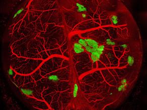 Islet-Mimetic Organoid Vascularization Utilizing Microvascular Fragments - AiCHe World Summit