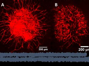 Vascularizing Adipose Organoids (vAOs) in vitro