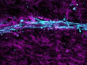 Angiomics enables scientific breakthrough.