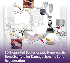 3D Bioprinted Bone Regeneration