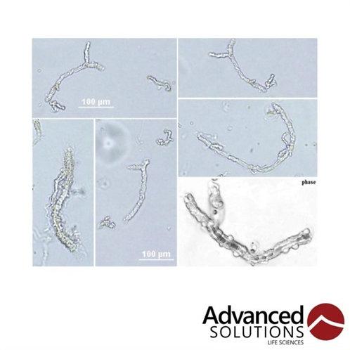 Angiomics - HAMV Human Adipose Microvessels