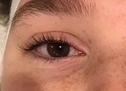 Before Eye treatment_edited.jpg