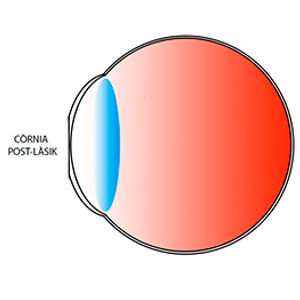 Curvatura retocada després d´una intervenció amb lasik