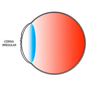 Una còrnia irregular proporciona una mala qualitat de visió